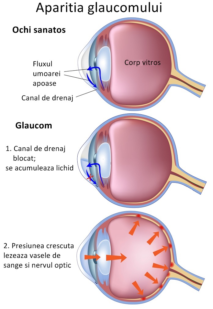 http://www.dreamstime.com/stock-image-stages-glaucoma-image19891451